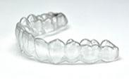 隱形矯正 (U-Teeth)