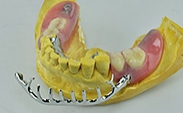 旋鎖可撤式局部假牙