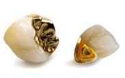 金屬瓷牙冠